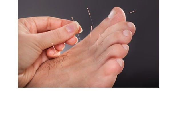 Podiatric Acupuncture