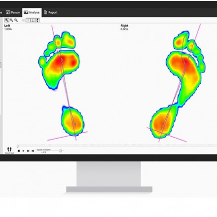 Gait Analysis/Biomechanics